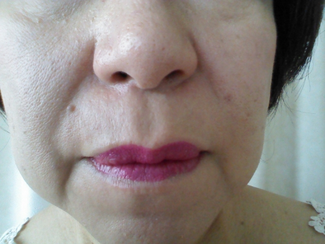 エストロゲン減少とたるみ 顔面骨密度