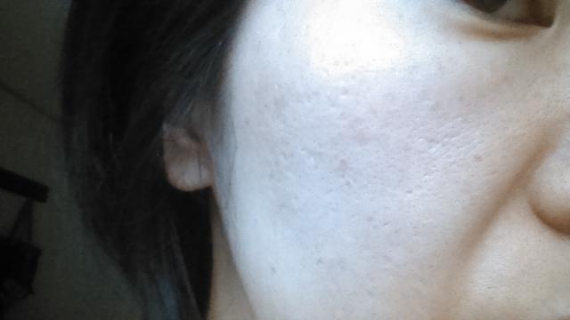 更年期の肌トラブルの原因と症状