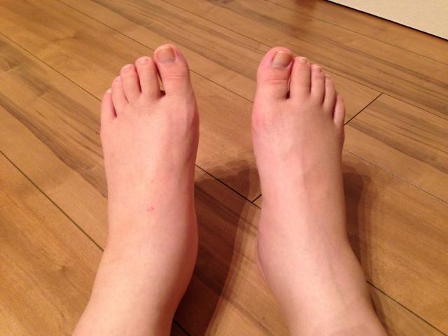 脚がむくむとだるくてだるくて、ひどい時だと眠れないほど辛いこともあります。
